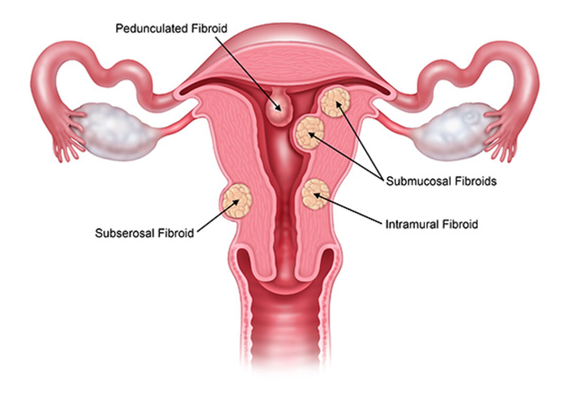 uterine fibroid removal